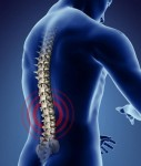 Certain low back conditions give rise to more than just low back pain.